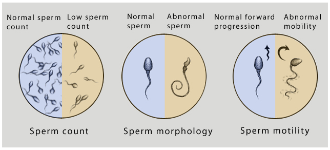 sperma-tsvet-gustota-ot-chego-zavisit
