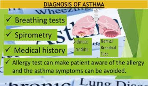 Asthma Disease