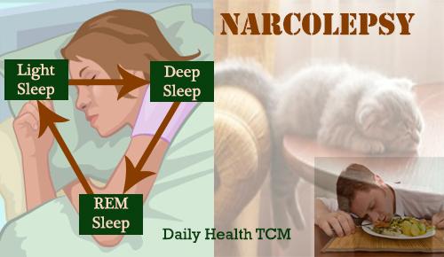 Narcolapsy