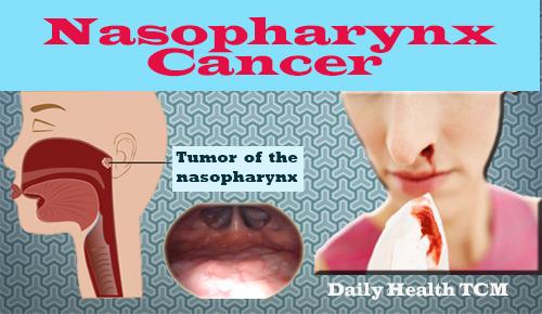 Nasopharynx Cancer