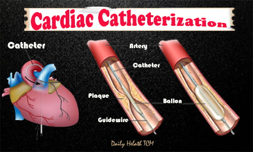 Catheterization